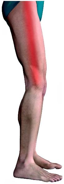 smerter på ydersiden af knæet